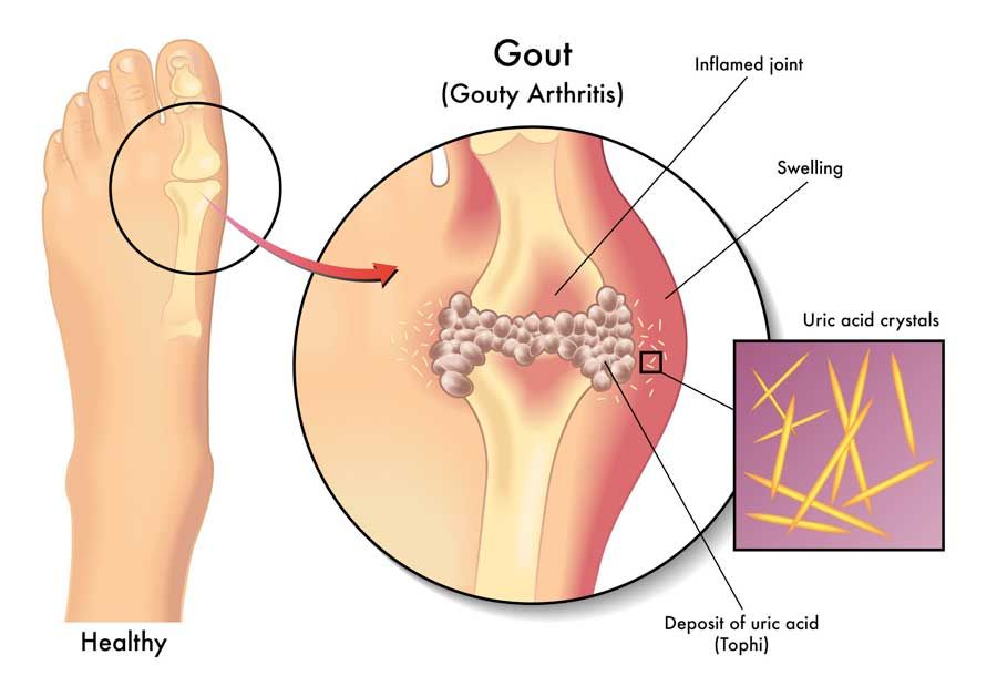 diagram of gout in foot with uric acid crystals