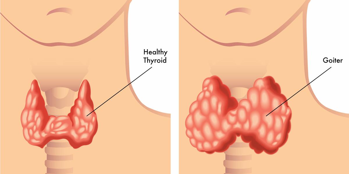 Foods That Cause Hypothyroidism Diagnosis Diet